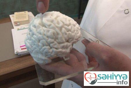 Türkiyədə İLK: 3D printerlə insan beyninin nüsxəsi hazırlandı .